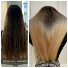 before and after by Leyla at the klinik